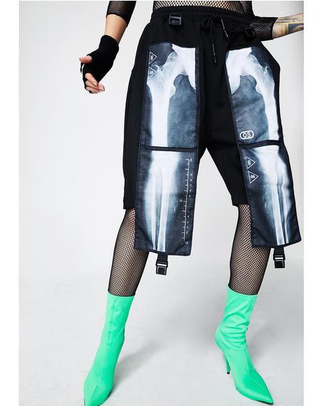 X-Ray Shorts