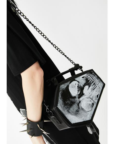 Anatomical Skull Coffin Purse Bag