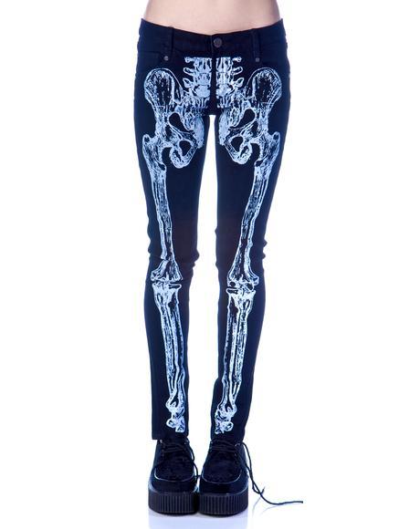 Wishbone Skinny Jeans